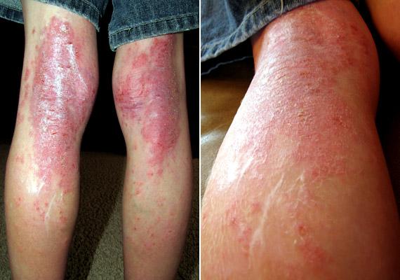 csiga pikkelysömör kezelése rabja piros foltok az arcon