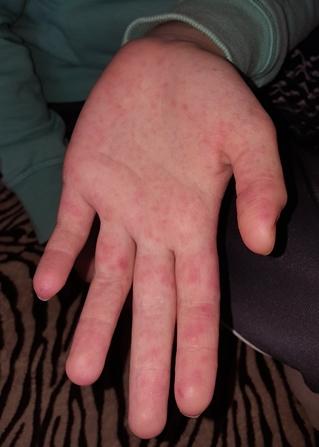 piros folt a jobb kéz csuklóján