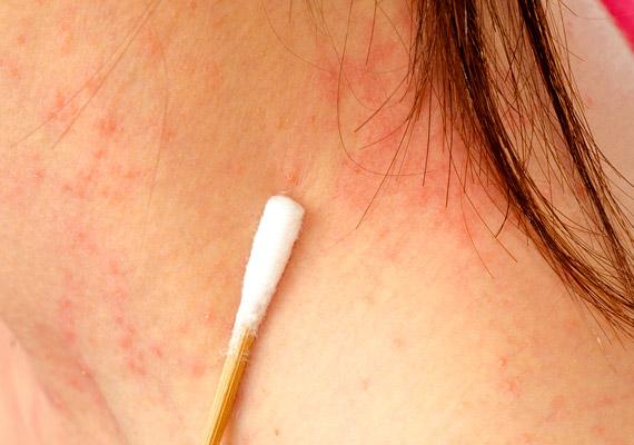 vörös foltok a nyakon hogyan kell kezelni)