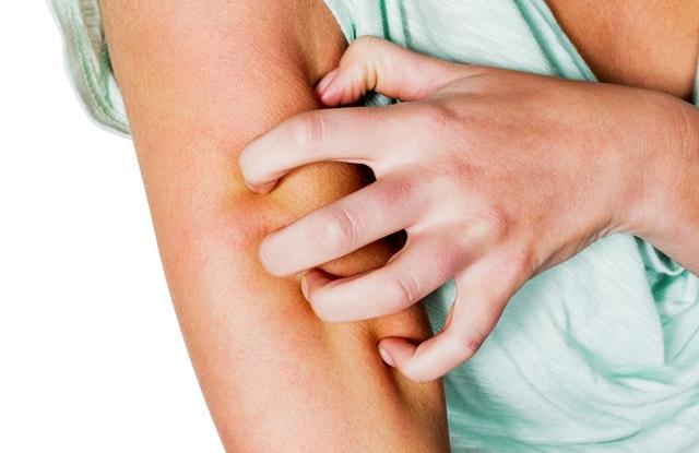 cédrusmagolaj pikkelysömör kezelése