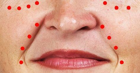 hogyan lehet megszabadulni az arc vörös foltjaitól fogmosás után vörös foltok az orr alatt az arcon