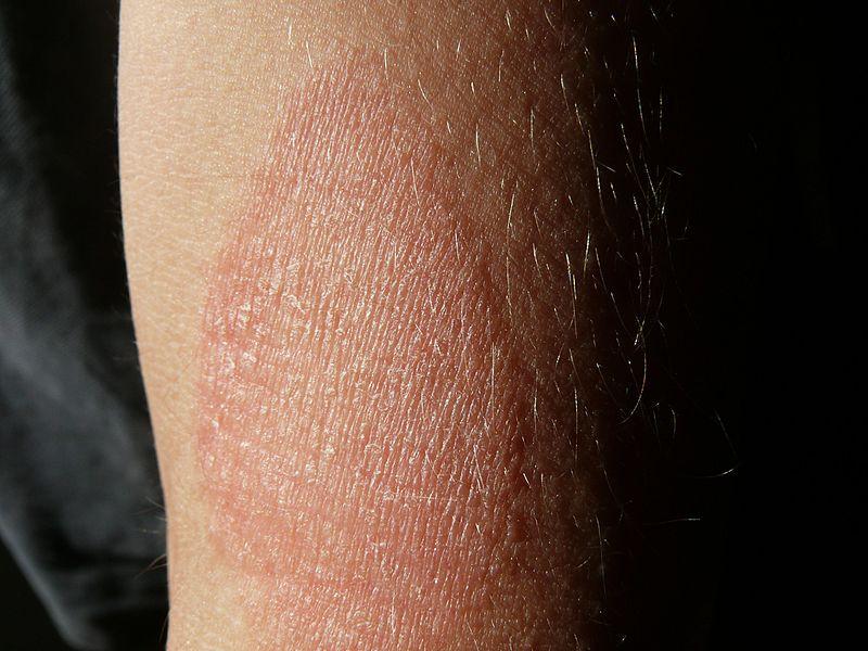 vörös folt a hónaljban hogyan kell kezelni)