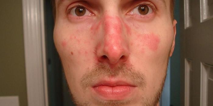 az arcbőr feszes és vörös foltok)