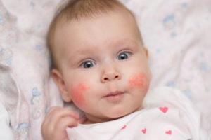 a fején vörös foltok viszketnek és lehúzódnak a fénykép)