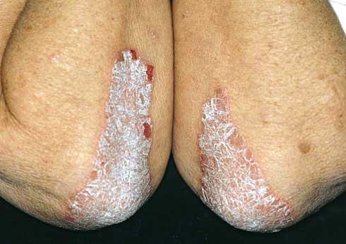 pikkelysömör a lábon fotó és kezelés