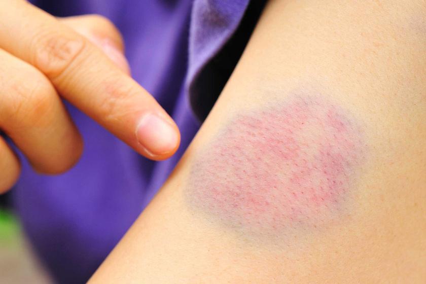 piros fájdalmas folt jelent meg a lábán)
