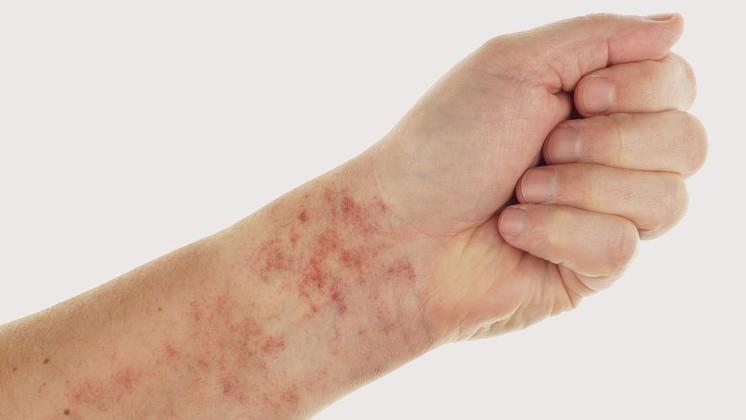 piros folt a kéz hátán egy nagy piros folt a kar belsejében