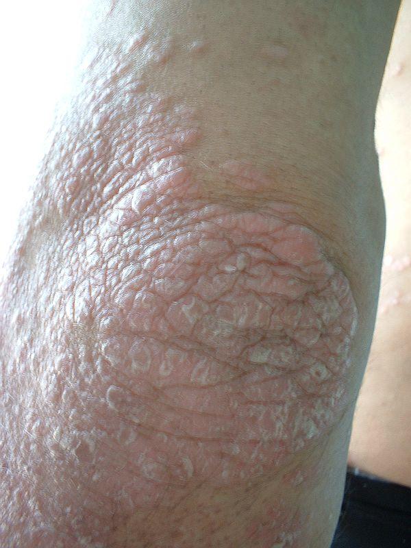 exudatív pikkelysömör, mint kezelni vörös foltok a lábakon és viszkető