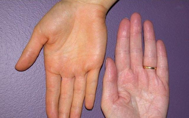 folt a bőrön vörös sima folt hogyan súlyosbíthatja a pikkelysömör gyógyszereivel