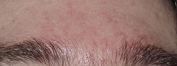Seborrhoeas (gyulladt, hámló) bőr - Dermaonline javaslata