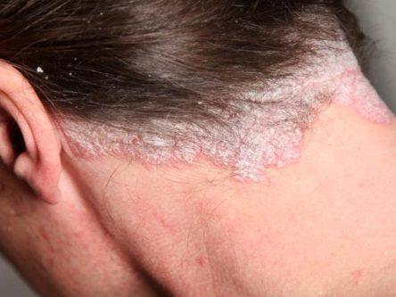 Pinworms kezelése: tünetek és gyógyszerek Hogyan lehet megszabadulni a pinworm viszketésétől