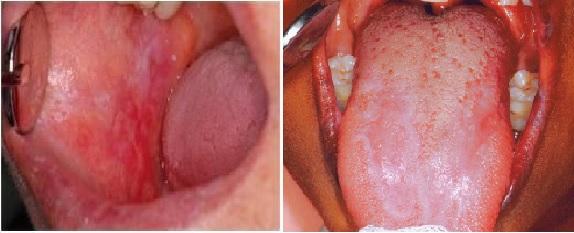 hogyan lehet világosítani az arcot a vörös foltoktól pikkelysömör homeopátia kezelési vélemények
