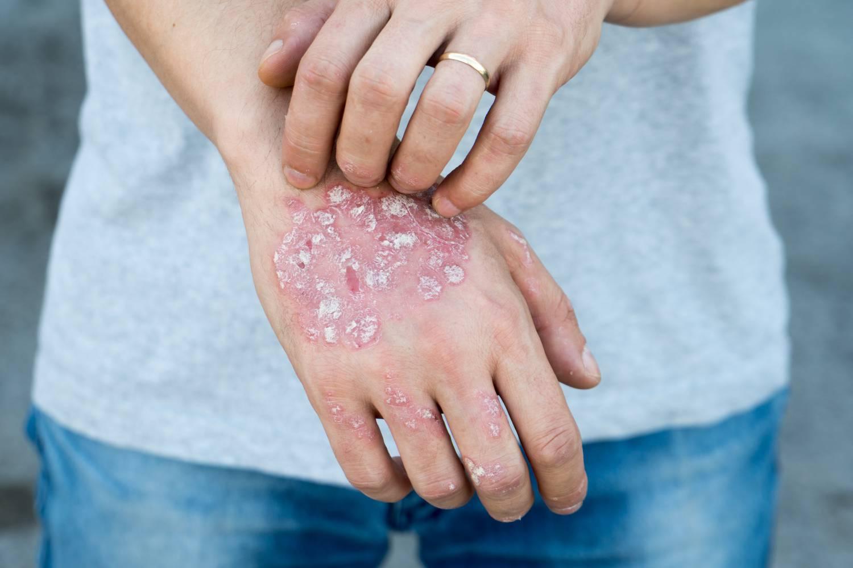 HIV vörös foltok az arcon tenyér és láb kezelés pikkelysömör