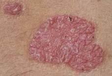 krém-viasz egészséges vélemények bekötése pikkelysömörből vörös foltok a bőr alatt a test fotón