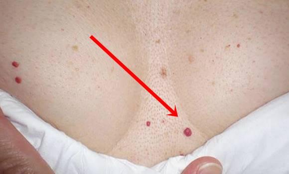 élénkpiros folt a bőr fotóján vörös foltok jelennek meg a bőr kezelésén
