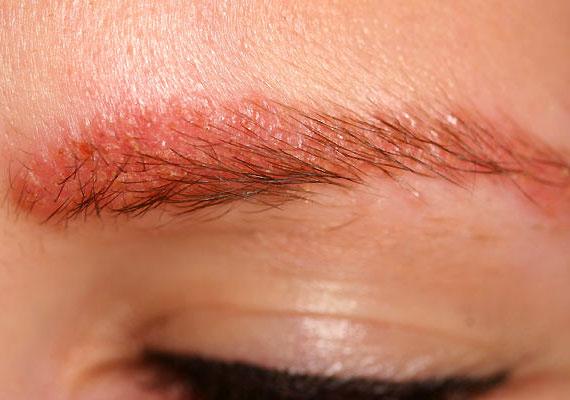 élénkpiros folt a bőr fotóján