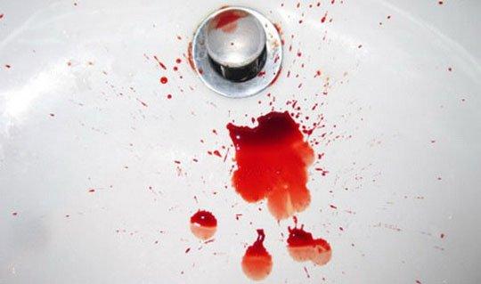 álomkönyv piros foltok a kezén pikkelysömör kezdeti szakasza kezelés fotó