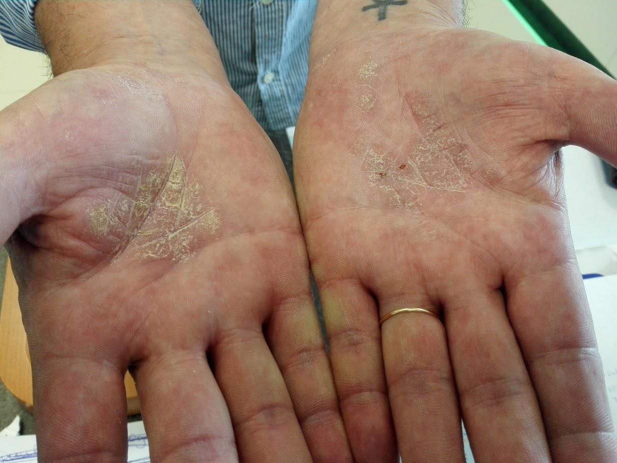 pikkelysömör a kezeken tünetek kezelése vörös foltok a lábakon és égő érzés