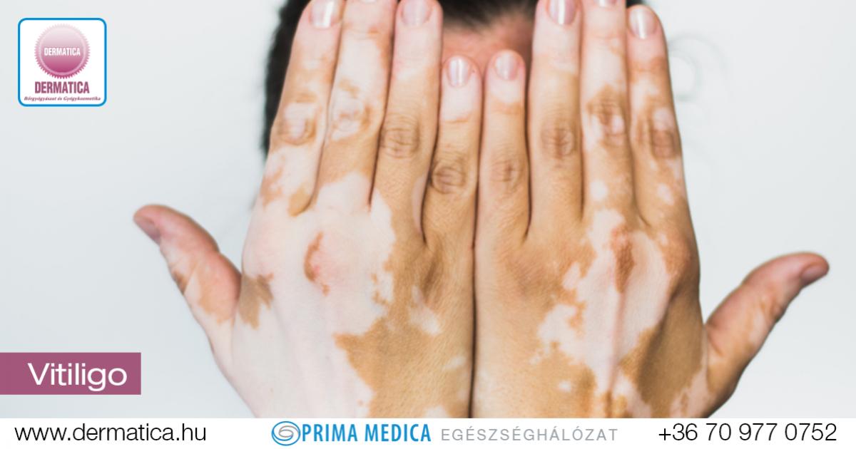 pikkelysömör kenőcs öregségi foltok pikkelysömör progresszív stádiumának kezelése