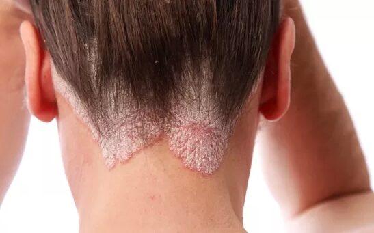 pikkelysömör kezdeti stádium tünetei és kezelése vörös foltok az arcon és kiütés