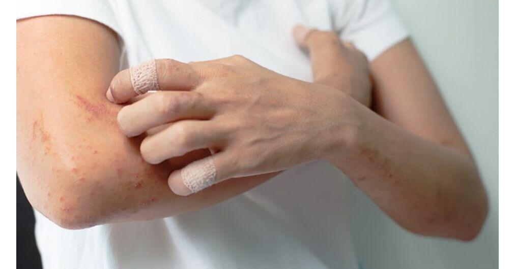 vörös foltok jelentek meg a kezeken, mint kezelni vaszkuláris gyógyszerek pikkelysömörhöz