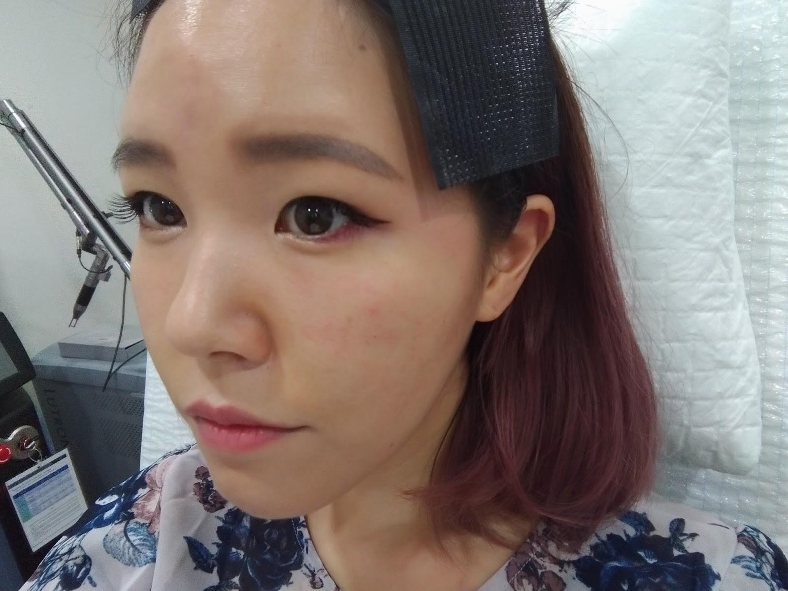 pikkelysömör kezelése Hainan reviews