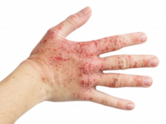 pikkelysömör kezelésére hiv