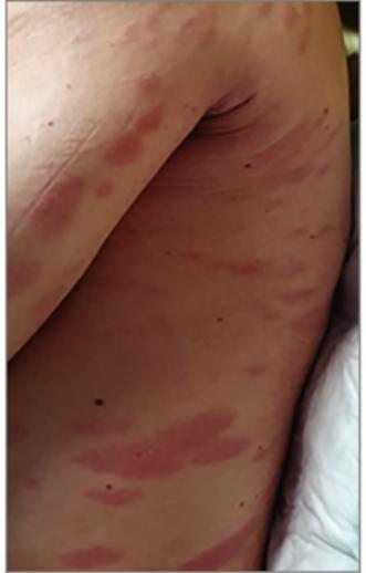piros foltok a lábakon okozzák a fénykép megjelenését)