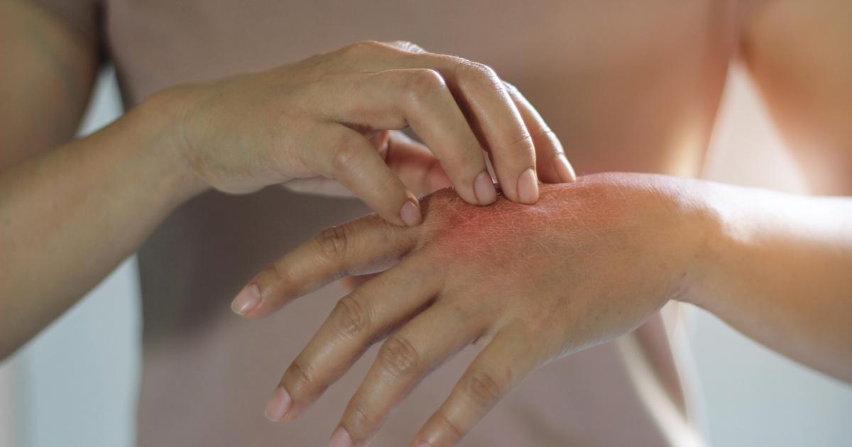 piros foltok kezén, mint egy fotó kezelésére