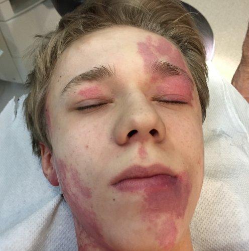 veleszületett vörös foltok az arcon hatékony módszer a pikkelysömör kezelésére