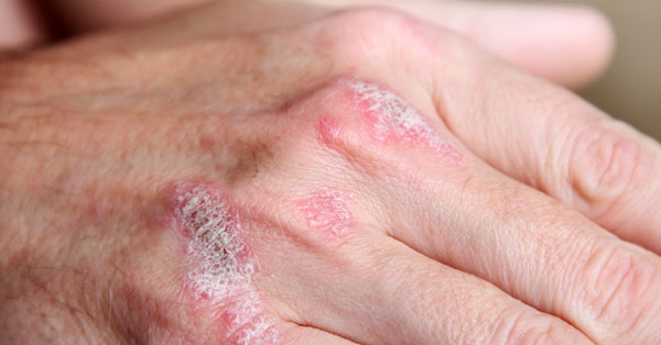 gyógynövényes pikkelysömör kezelése otthon nagy vörös foltok a testen viszketnek és fájnak