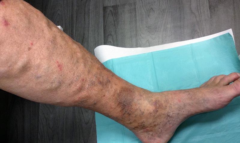 vörös folt az alsó lábszár bőrén)
