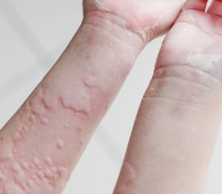 kiütés a kezeken vörös foltok formájában felnőtteknél