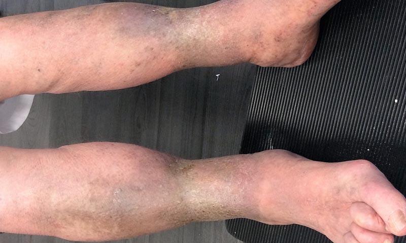 vörös foltok a lábak vénáin piros folt a hasa fotó
