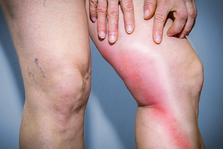 vörös foltok a lábon visszeres kezeléssel)