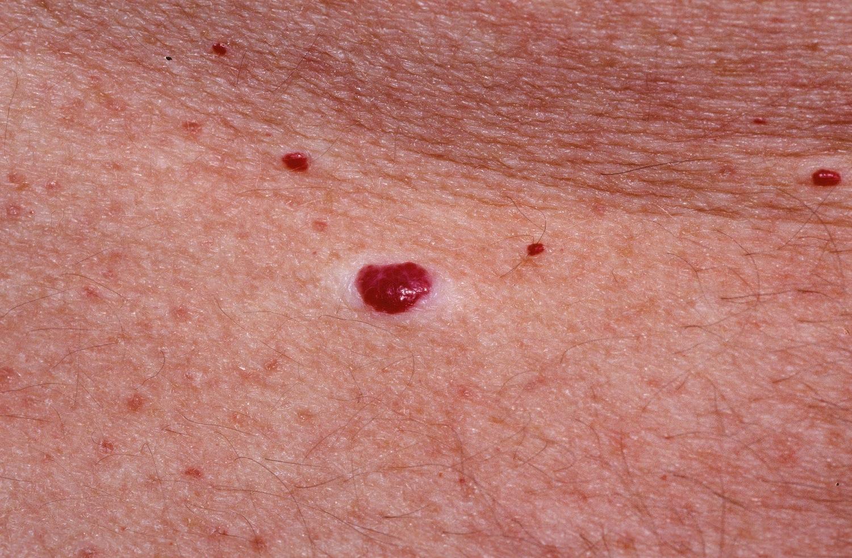 vörös foltok anyajegyek formájában a bőrön