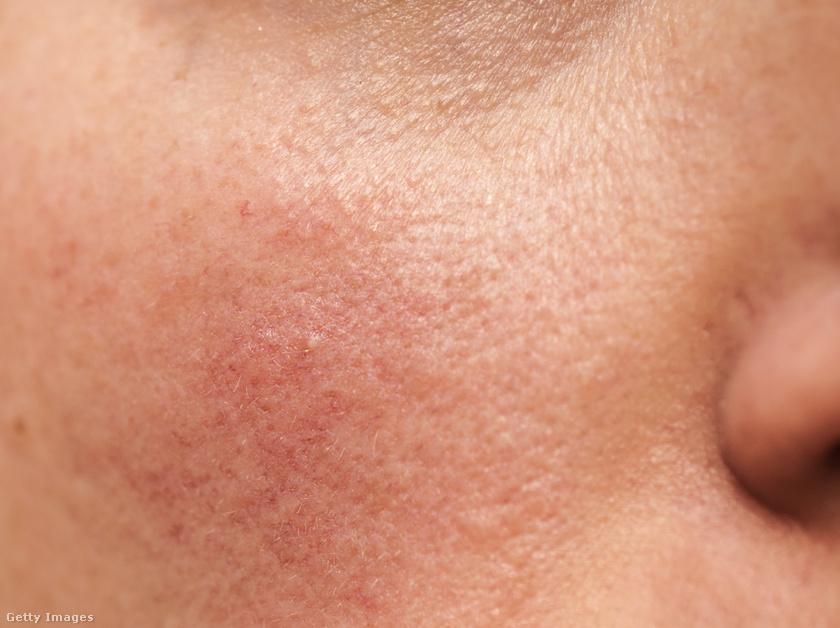 vörös foltok az arcon fotó és diagnózis