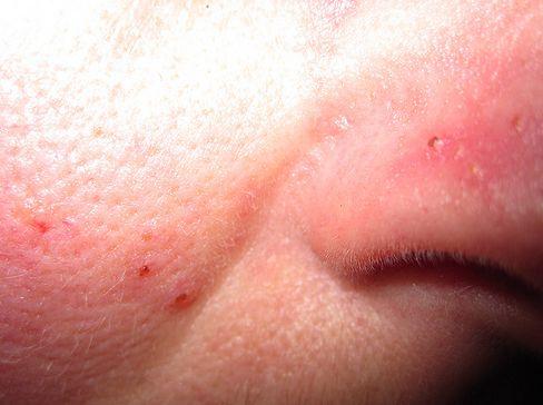vörös foltok az arcon rosacea vörös foltok a mell alatti bőrön