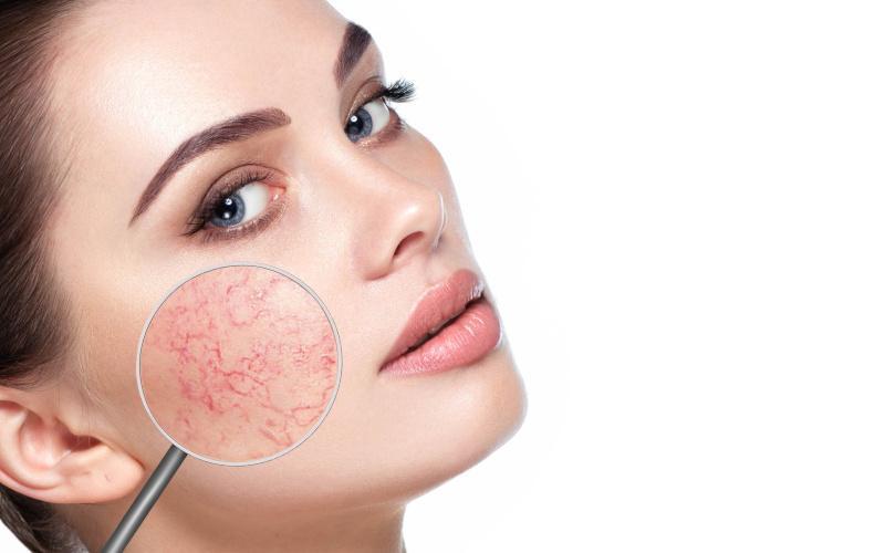 vörös foltok az arcon és hámlasztó kezelés)