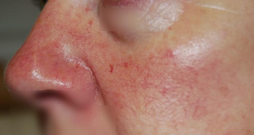 vörös foltok az orr alatt az arcon