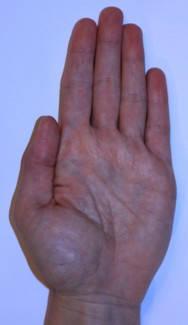 vörös foltok jelentek meg a bal kézen