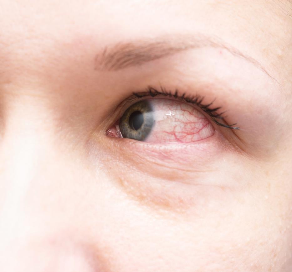 vörös foltok jelentek meg a szem alatt, és lehámozódtak)