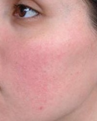 vörös foltok jelentek meg az arcon; mi ez? a pikkelysmr kezelsnek jelei