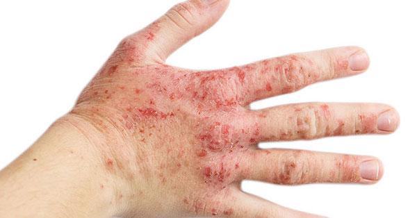 vörös foltok jöttek ki a kezeken duzzadva)