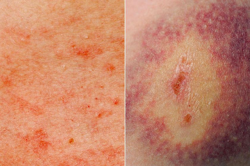 vörös pattanások a bőrön, majd foltok keletkeznek