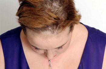 hogyan lehet megszabadulni a fejbőr piros foltjaitól