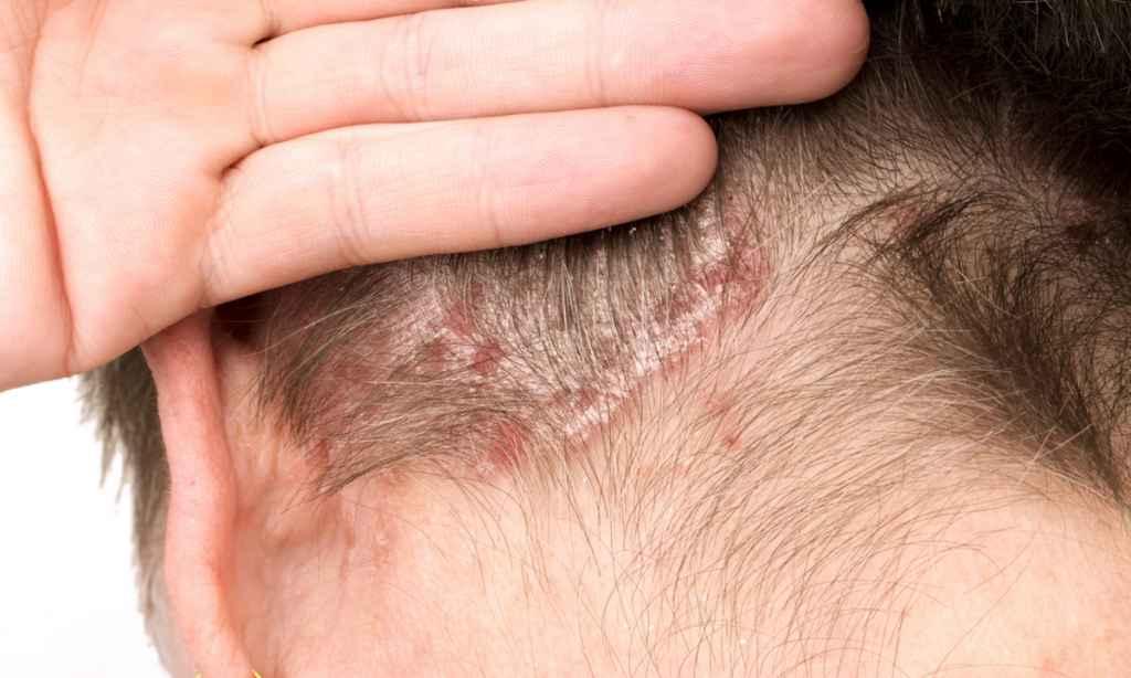 pikkelysömör típusai és kezelésük fotó egészséges krém viasz pikkelysömörből