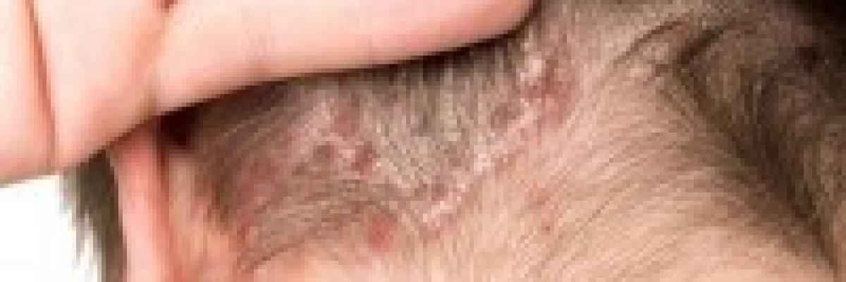 hogyan kezeljük a bőrt belülről pikkelysömörrel valódi kezelések a pikkelysömörhöz