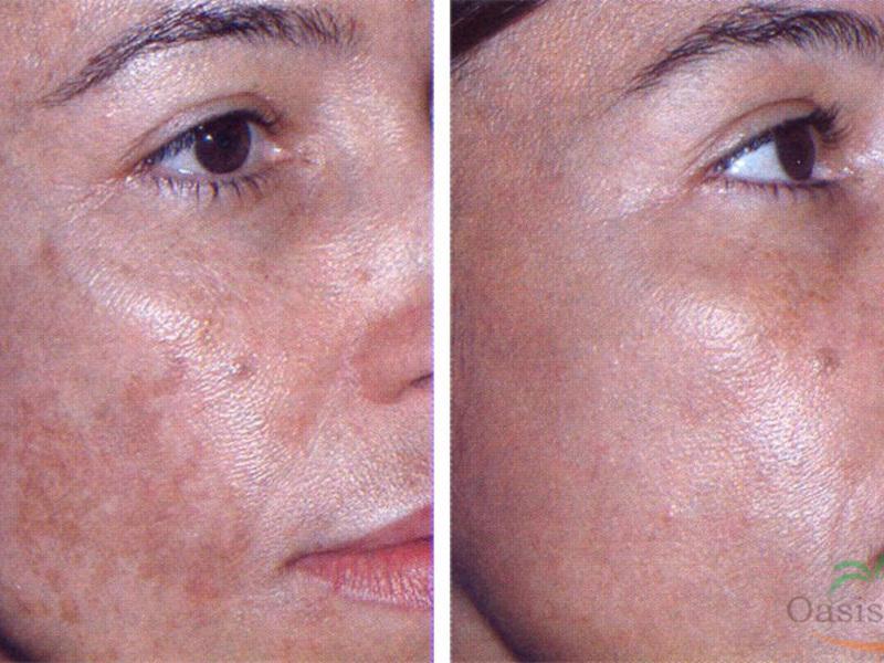 Bőrdaganatok: melyik a jó- és a rosszindulatú?