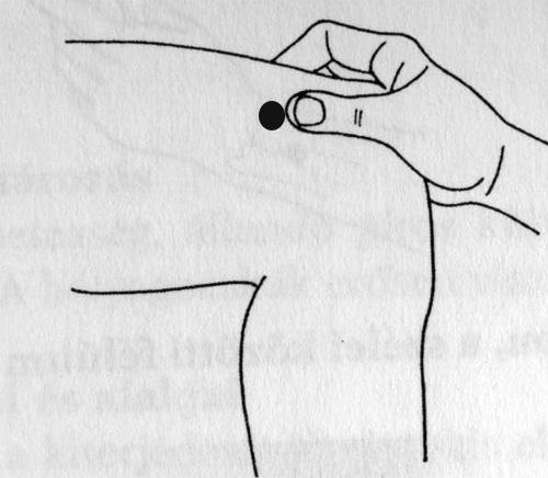 akupunktúrás pikkelysömör hogyan kell kezelni)